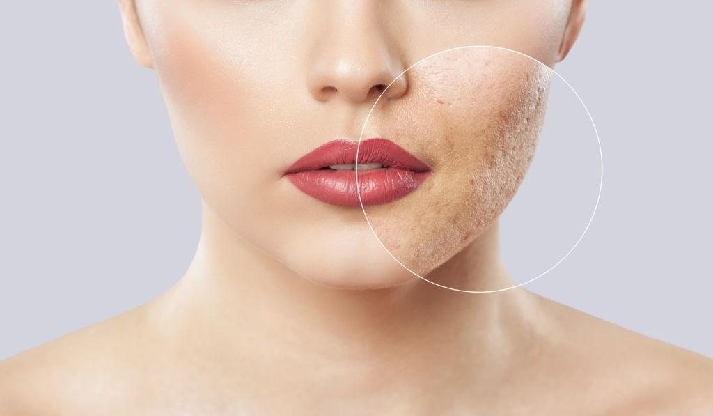 Những dấu hiệu và triệu chứng khi cơ thể phụ nữ dư thừa hormone testosterone