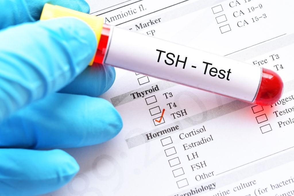 Xét nghiệm chức năng tuyến giáp qua hormone TSH, chỉ số T3, T4 Free